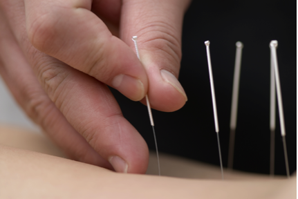 Functional Integrated Needling